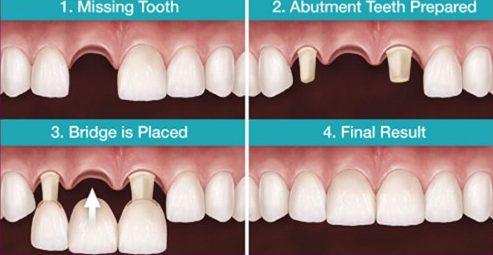 Sau khi làm cầu răng sứ bao lâu thì xương hàm bị tiêu đi 1