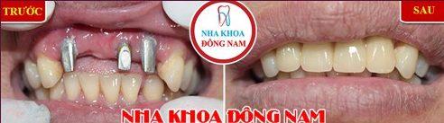 Sau khi làm cầu răng sứ bao lâu thì xương hàm bị tiêu đi 4