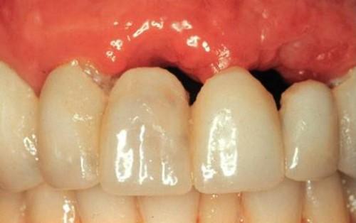 tiêu xương dưới cầu răng sứ