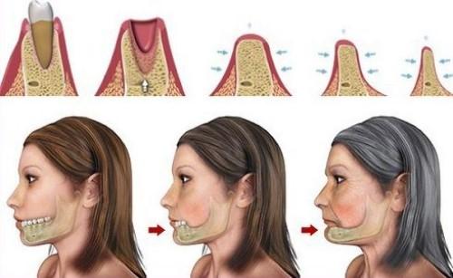 quá trình tiêu xương sau khi mất răng