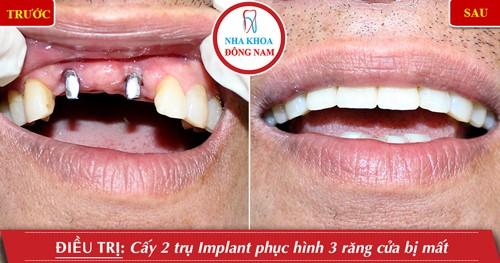 trồng 2 trụ implant cho răng cửa