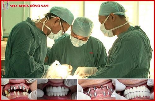 Sự khác biệt của các loại trụ Implant 10