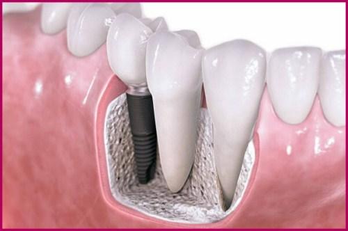Sự khác biệt của các loại trụ Implant Sự khác biệt của các loại trụ Implant