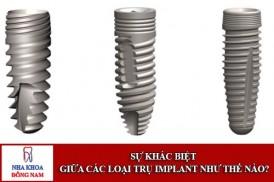 Sự khác biệt của các loại trụ Implant