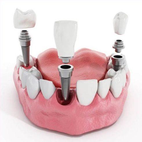 Sự khác biệt của các loại trụ Implant 3