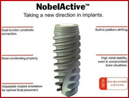 Sự khác biệt của các loại trụ Implant 8