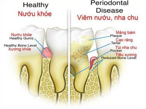 Tại sao giá điều trị tủy răng khác nhau giữa các vị trí trên khung hàm 2
