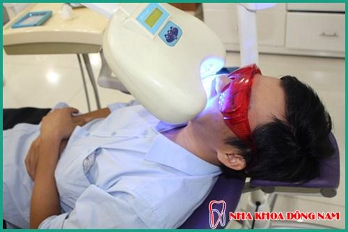 Tẩy trắng răng bằng đèn Zoom giá bao nhiêu 2