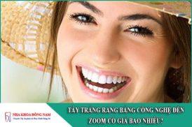 tẩy trắng răng bằng công nghệ đèn zoom giá bao nhiêu