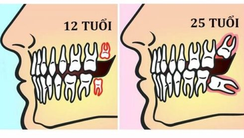 thời gian mọc răng khôn kéo dài trong bao lâu 1