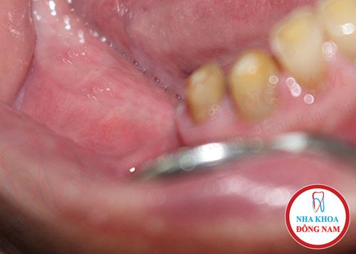 Tình trạng tiêu xương hàm khi mất răng lâu ngày