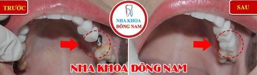 trồng răng implant răng hàm trên