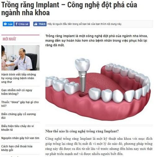 Trồng răng implant công nghệ đột phá trong ngành nha 1
