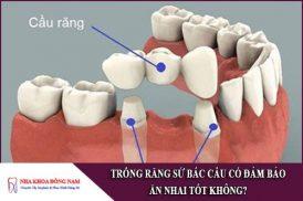trồng răng sứ bắc cầu có đảm bảo ăn nhai tốt không