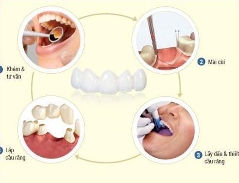 quy trình làm cầu răng sứ