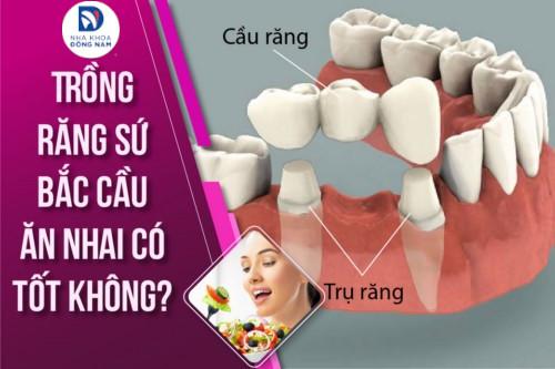 trồng răng sứ bắc cầu có đảm bảo ăn nhai tốt không 5