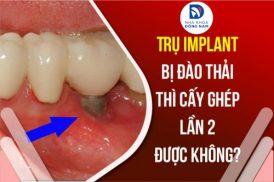 trụ implant bị đào thải thì có cấy ghép lần 2 được không