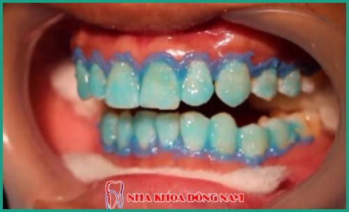 Trường hợp lưu ý không nên tẩy trắng răng 2