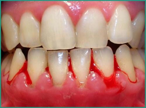 Trường hợp lưu ý không nên tẩy trắng răng 6