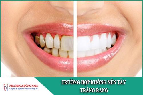 trường hợp không nên tẩy trắng răng
