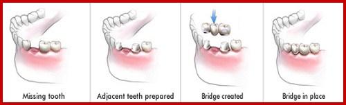 Vì sao bác sĩ khuyên nên trồng răng implant khi mất răng 1