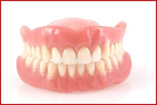 Vì sao bác sĩ khuyên nên trồng răng implant khi mất răng 2