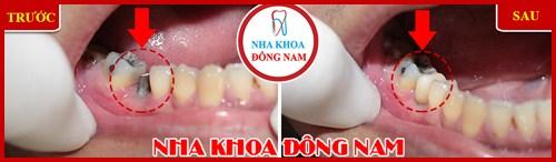 Vì sao bác sĩ khuyên nên trồng răng implant khi mất răng 4