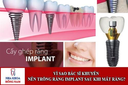 Vì sao bác sĩ khuyên nên trồng răng implant khi mất răng