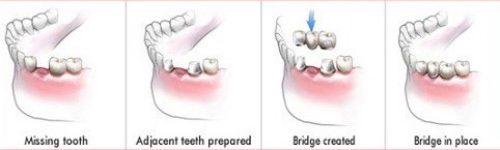 trồng răng implant sau khi mất răng