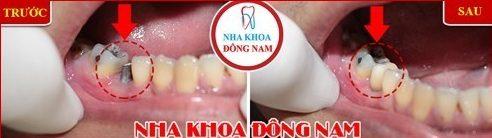 vì sao bác sĩ khuyên nên trồng răng implant sau khi mất răng 8