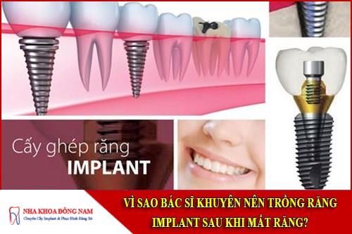 vì sao bác sĩ khuyên nên trồng răng implant sau khi mất răng