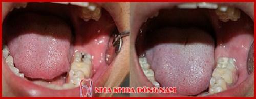 Bí mật về cách chữa trị đau răng cấp tốc 5