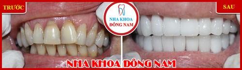 Bí mật về cách chữa trị đau răng cấp tốc 6