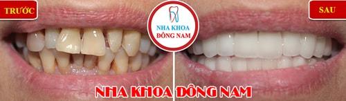 Bọc răng sứ cho răng bị ố vàng và mọc không đều