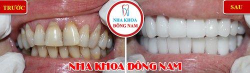 Bọc răng sứ cho răng bị khuyết cổ