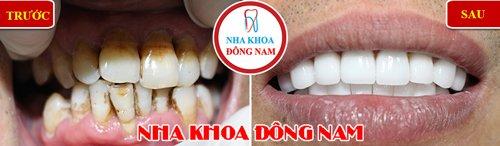 Bọc răng sứ cho răng bị khuyết cổ và vàng răng