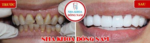 Bọc 2 hàm răng sứ Hi-zirconia cho răng bị ố vàng