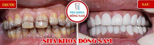 Bọc răng sứ cho răng bị ố vàng và nhiễm kháng sinh