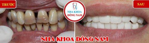 bọc răng sứ cho răng bị thưa và xỉn màu