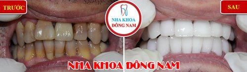 Bọc răng sứ cho răng bị ố vàng nhiễm kháng sinh nặng