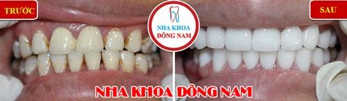 Bọc răng sứ cho răng bị ố vàng và không đều