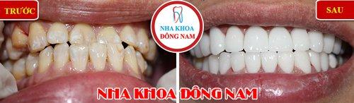 Bọc răng sứ cho răng bị vàng và lộn xộn