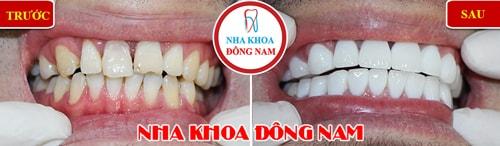 Bọc răng sứ cho răng mọc không đều