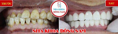bọc răng sứ 2 hàm cho răng bị nhiễm kháng sinh