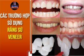 Các Trường Hợp Sử Dụng Răng Sứ Veneer Trong Nha Khoa