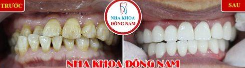 Các trường hợp bọc răng sứ veneer 10
