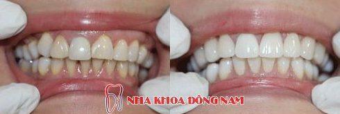 Các trường hợp bọc răng sứ veneer 11
