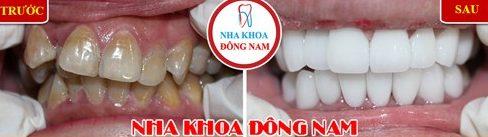Các trường hợp bọc răng sứ veneer 12