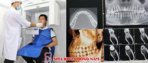 Các trường hợp bọc răng sứ veneer 6
