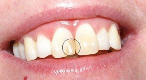 Các trường hợp bọc răng sứ veneer 7